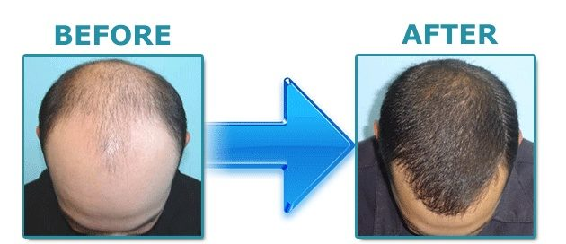 hairfortin-before-after